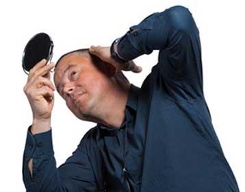 Haarausfall-Alopezie